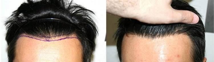 کاشت موی FIT