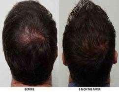 کاشت مو، درمان ریزش مو