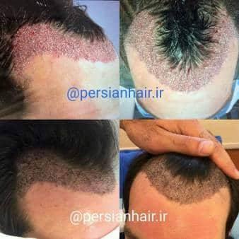 کاشت موی FUT