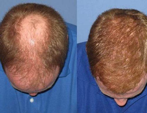 نکاتی که قبل از جراحی کاشت مو باید بدانید.