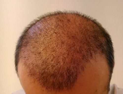 موهای فرِ آفریقایی