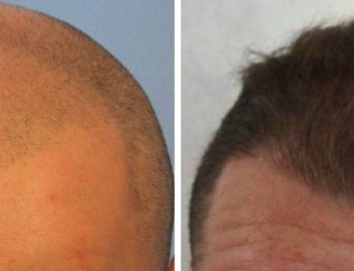 پیوند مو در سن نوجوانی