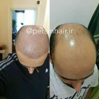 هزینه کاشت کامل مو